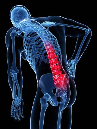 antalgia acute disc injury