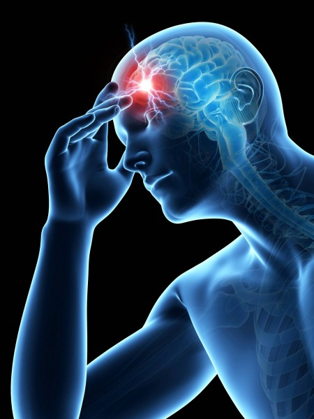 Frontal Headache